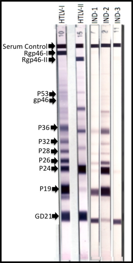 The First Two Western Blot Strips Depict Positive Control HTLV I And II