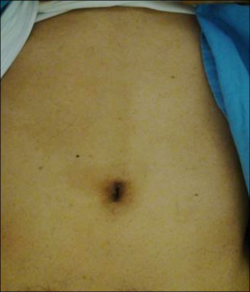 A photograph of the operation scar: the single skin incision is often hidden within the umbilicus.