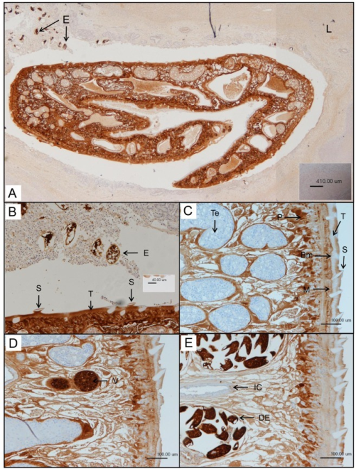 Images of FhGST-S1 localisation within F. hepatica tissue.A) Anti-F. hepatica FhGST-S1 immunohistochemical stain of a fluke in cross section within the host sheep liver bile duct. Heavily stained eggs (E) are shown released from the fluke into the bile duct in the top left-hand corner. Brown stained areas show the presence of FhGST-S1 proteins. The lack of staining in the host liver (L) highlights the specificity of the antibody. Composite picture. B) Enlarged region of A showing the intense anti-F. hepatica FhGST-S1staining in the voided eggs (E). The spines (S) present in the tegument (T) can be clearly distinguished by their lack of FhGST-S1 presence. C–E) Cross sections of a F. hepatica adult highlighting staining of FhGST-S1 in the parenchyma (P), musculature (M),the tegument (T), basal membrane (Bm) and most intensely in the vitelline cells (V) and developing eggs (DE). No staining can be seen in the tegumental spines (S), testes (T) or the intestinal caecum (IC).