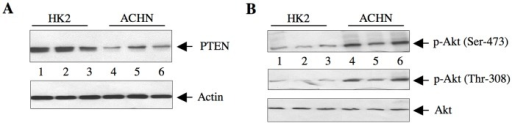 Expression of PTEN in HK2 and ACHN cells.(A) The lysates of cells from three independent wells of HK2 and ACHN cells were immunoblotted with PTEN and actin antibodies. (B) The same cell lysates were immunoblotted with phospho-Akt (Thr-308), phospho-Akt (Ser-473) and Akt antibodies.
