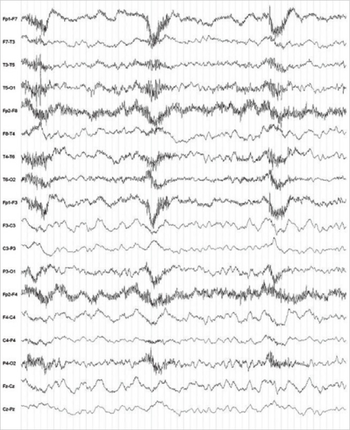 EEG of the patient. The EEG shows a partial seizure lesion and severe, diffuse cerebral dysfunction in the right temporal lobe area.