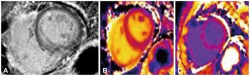 Late gadolinium enhancement (LGE) (A), pre- and post-contrast (B and C) T1 map images using 3-T MR system in a patient with secondary myocardial amyloidosis from multiple myeloma. LGE-MR image shows diffuse subendocardial gadolinium enhancement, which is a typical finding of myocardial amyloidosis deposition. Post-contrast T1 map image shows decrease of T1 value in the myocardium which enables quantification of extracellular volume fraction.
