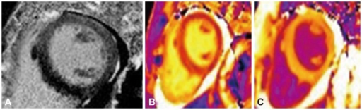 Late gadolinium enhancement (LGE) (A), pre- and post-contrast (B and C) T1 map images using 3-T MR system in a patient with esoniophilic myocarditis diagnosed by the biopsy. LGE-MR image shows no remarkable late gadolinium enhancement in the myocardium. Pre-contrast T1 map image shows the prolongation of T1 value in the focal area of mid ventricular septum, compared to the lateral wall. It can suggest the probable edema in the myocardium. Post-contrast T1 mapping show diffusely low T1 value (mean±standard deviation, 410.4±34.4 msec) from gadolinium-induced T1 shortening in the myocardium. Myocardial extracellular volume fraction calculated by the T1 mapping results is 33.5% which is higher than that in normal control in the literature.
