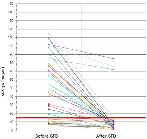 IgA antigliadin antibodies before and after GFD in CD patients: anti-gliadin antibodies (AGA) of IgA class before and after gluten free diet (GFD) in patients with celiac disease (CD).
