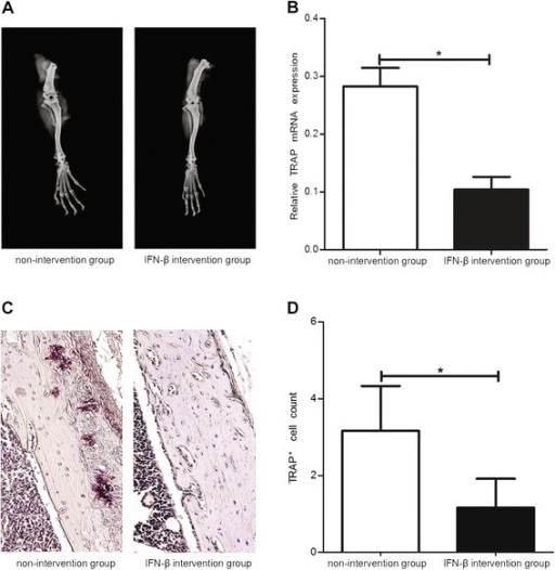 Effect of exogenous IFN-β administration on the destruction of joint bones. Ankle joint destruction (A), TRAP mRNA level (B), TRAP staining of joints (C), and the number of TRAP-positive multi-nucleated (≥3 nuclei) cells (D) in the IFN-β intervention and non-intervention groups. *: P <0.05.