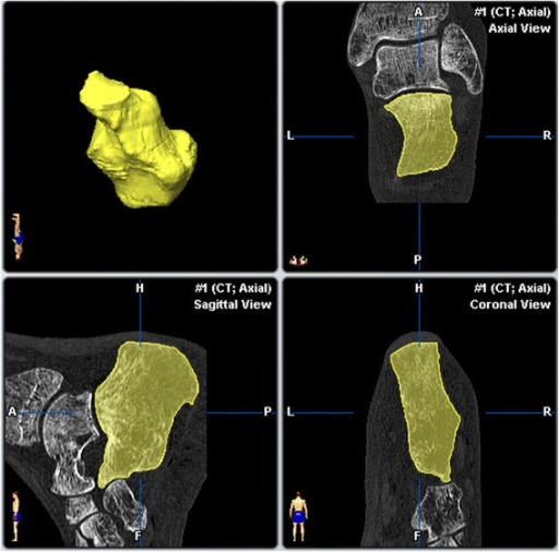 Preoperative segmentation of the calcaneus facets.