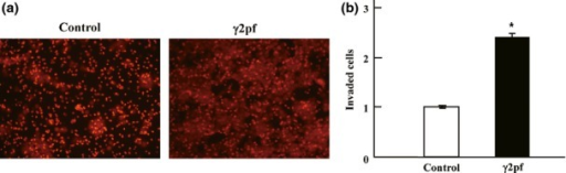 Effect of laminin γ2 proteolytic fragment (γ2pf) on transendothelial migration of T-24 carcinoma cells. (a) Fluorescence-labeled Mock-T24 cells were incubated on a HUVEC monolayer with PBS (Control) or with γ2pf (2 μg/mL) in Transwell chambers. After incubation for 18 h, the cells that had migrated onto the lower surface of membrane filters were fixed and photographed under a fluorescence microscope. Small homogeneous spots are pores of the membrane filters. (b) Quantitative analysis of migrated cells. The areas of cells on the lower surface of membrane filters were measured by Image-J. Each point represents the mean ± SD (bar) of triplicate chambers. *P < 0.05. Essentially the same results were reproduced in an additional experiment.