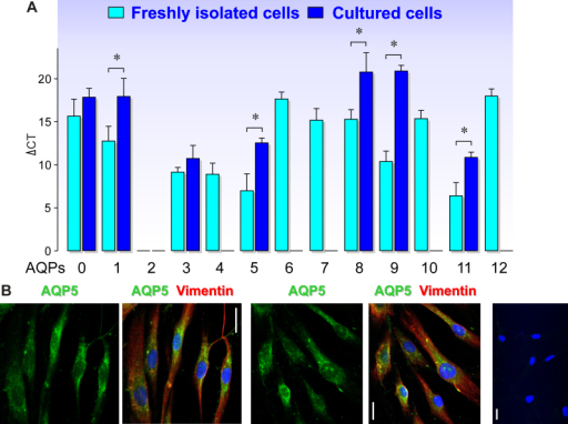 Expression of AQP subtypes in freshly isolated and cultured human RPE cells. A. Comparison of the expression levels of AQP1–12 genes in freshly isolated and cultured RPE cells. Bars represent means ± SEM normalized cycle thresholds (ΔCT) required to detect mRNA in real-time RT–PCR. The smaller the ΔCT value, the higher the cellular mRNA level. The values were obtained in four independent preparations of freshly isolated cells from different donors and in three independent cultures using cells from different donors, respectively. Significant difference: *p<0.05. B. Immunolabeling of cultured human RPE cells with antibodies against AQP5 (green) and vimentin (red). Cell nuclei were labeled with Hoechst 33,258 (blue). Right: Negative control cells stained without primary antibodies. Bars, 20 µm.