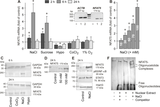 Hyperosmolarity induces NFAT5 gene and protein expression, and the DNA binding of NFAT5, in RPE cells. The mRNA level (A, B) was determined with real-time RT–PCR analysis in cells stimulated for 2, 6, and 24 h, and are expressed as folds of isoosmotic unstimulated control. The protein levels (C-E) were determined by western blot analysis of cytosolic (C) and nuclear extracts (D, E) of cells stimulated for 6 and 24 h, respectively. A. Effects of osmolarity changes, CoCl2 (150 µM; n=5), and cell culture in 1% O2 (n=4) on the level of NFAT5 mRNA. The hyperosmotic media were made up by adding 100 mM NaCl (n=5) and 100 mM sucrose (n=3), respectively. The hypoosmotic medium contained 60% of control osmolarity (n=5). Inset: Expression of β-actin and NFAT5 genes in RPE cells from different donors (1, 2) determined by RT–PCR. Negative controls (-) were done by adding double-distilled water instead of cDNA as a template. B. Dose-dependent effect of high extracellular NaCl on the cellular level of AQP5 mRNA (n=4). The cells were cultured for 6 h in media that were made hyperosmotic by the addition of 10 to 100 mM NaCl. C. Effects of CoCl2 (150 µM), as well as of hyperosmotic (+ 100 mM NaCl) and hypoosmotic (Hypo) media, on the cellular level of the NFAT5 protein. Similar results were obtained in three independent experiments using cells from different donors. D. Hyperosmolarity (+ 50 and + 100 mM NaCl, respectively) increased dose-dependently the nuclear level of the NFAT5 protein. E. Hyperosmolarity (+ 100 mM NaCl) increased the nuclear levels of NFAT5 and p65/NF-κB proteins of RPE cells, while the nuclear level of STAT3 protein remained unchanged. As a control, the nuclear level of the histone H3 (HisH3) protein was determined. F. Hyperosmolarity (+ 100 mM NaCl) induces the DNA binding of NFAT5, as indicated by the appearance of complexes of NFAT5 protein and labeled oligonucleotides in EMSA that were not observed under isoosmotic conditions. An excess of unlabeled oligonucleotides (Competitor) abrogated the binding of NFAT5 protein to labeled oligonucleotides. Similar results were obtained in three independent experiments using cells from different donors. Bars represent means ± SEM obtained in independent experiments performed in triplicate. Significant difference versus isoosmotic unstimulated control: *p<0.05.