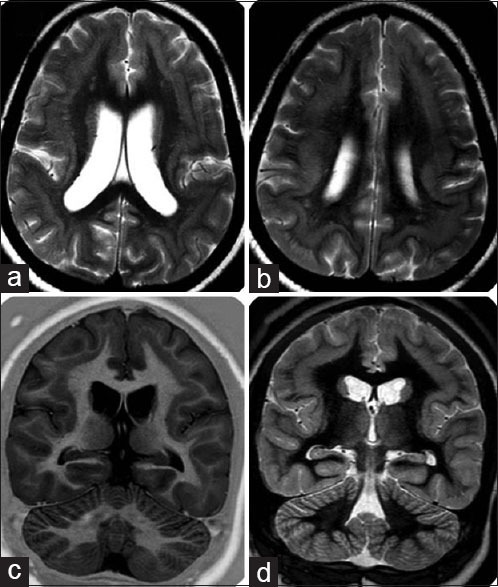 "Axial T2-weighted (a and b), coronal inversion recovery (c) and double inversion recovery (d) images demonstrating the smooth, laminar tissue, with same signal intensity as that of the grey matter, located between the white matter and cortical grey matter with thin rim of subcortical white matter separating the two layers of grey matter (""double cortex"")"