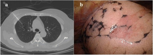 a The puncture needle (Temno Coaxial Introducer Needle, Care Fusion, PP1910) was inserted under the CT-guided imaging. b Intraoperative identification of the puncture holes at lung surface after one lung ventilation