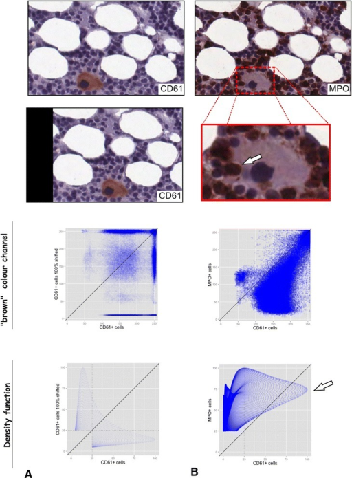 "Comparison of the colocalization via RBF to the standard colocalization analysis in fluorescence microscopy. The golden standard of colocalization analysis in fluorescence microscopy is to analyse the different colour channels (e.g. red and green). In this figure we simply matched this method to IHC by comparing and analysing the ""brown"" channel obtained by colour deconvolution. One small region of a slide sequentially stained for CD61 (A) and MPO (A) was analysed. Subsequently, colocalization on basis of the herein described RBF was compared to analysis of colour chancels. a One small region with one CD61-positive megakaryocyte (upper image) was compared to the same region shifted one cell width to left (middle image). The upper scatter plot shows the brown colour channels of the images plotted against each other, whereas the lower one shows the scatter plot for the RBF. b The same small region now stained for MPO was used to check for colocalization/direct spatial interaction of the CD61-positive megakaryocyte and the MPO-positive granulocytes (upper image). The arrow in the zoomed part of the image highlight direct spatial interaction of the megakaryocyte and the granulocytes. The upper scatter plot again shows the brown colour channels plotted against each other and the lower one shows the RBFs plotted against each other"