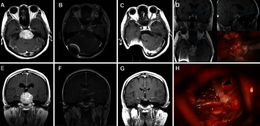 a and e Preoperative MR images of petroclival meningioma in a 45-year-old female patient who underwent ventriculoperitoneal shunt placement before tumor removal. b and f Immediate postoperative MR images show that the tumor was totally removed via the MLSO approach. c and g MR images show no recurrence of tumor 6 months after surgery. d The petroclival junction lesion and the tumor. h The basilar artery (black arrow head) was freely exposed after tumor resection