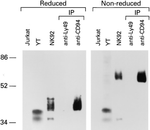 NKG2A is covalently associated with CD94. Lysates from either Jurkat, YT or NK-92 cells, together with anti-CD94 or control (antiLy49) immunoprecipitates (IP) from NK-92 were separated by SDS-PAGE  under reducing or non-reducing conditions and analyzed by Western blot  with anti-NKG2A peptide-specific Ab.