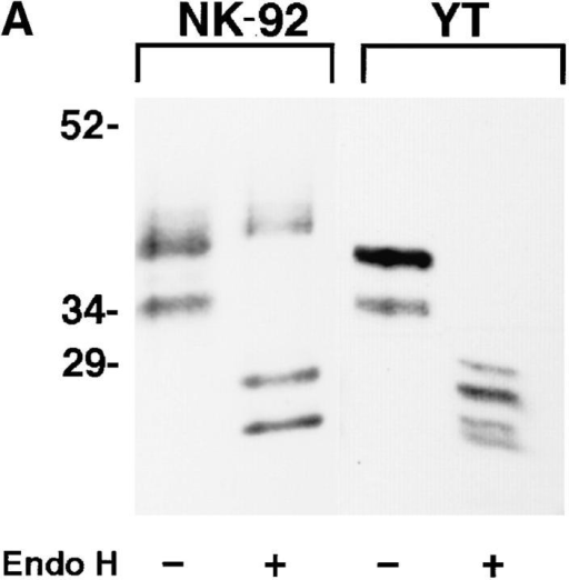 NKG2A fails to mature in the absence of CD94. (A) Whole cell lysates of NK-92 or YT were either digested with Endoglycosidase Hf (+)  or mock digested (−), separated by SDS-PAGE under reducing conditions and analyzed by Western blot with anti-NKG2A peptide-specific Ab. (B)  Anti-CD94, anti-NKG2A or control (anti-Ly49), immunoprecipitates from NK-92 cells were either digested with Endoglycosidase Hf, (+) or mock digested (−), separated by SDS-PAGE under reducing conditions and analyzed by Western blot with anti-NKG2A peptide-specific Ab. (C) NK-92 cell  lysates were exhaustively precleared with control (anti-Ly49), anti-CD94 or anti-NKG2A Ab. The remaining lysates were divided in two and either digested with Endoglycosidase Hf, (+) or mock digested (−), separated by SDS-PAGE under reducing conditions and analyzed by Western blot with antiNKG2A peptide Ab. The immunoblots in B and C were overexposed to detect trace amounts of immature CD94-associated NKG2A in B and to emphasize that no mature NKG2A could be detected in NK-92 lysates after removal of CD94 associated NKG2A in C.