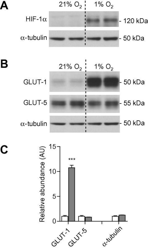 Facilitative glucose transporter protein expression in human adipocytes in hypoxia. Adipocytes at day 14 (post-induction of differentiation) were exposed to 21% or 1% O2 for 24 h. Total cellular lysates were isolated and western blot analysis performed for (A) HIF-1α, and (B) GLUT-1 and GLUT-5. Representative blots are shown. (C) Quantification of GLUT-1 and GLUT-5 proteins by densitometry normalised to α-tubulin. The densitometry values for each protein are set relative to the respective control as =1. n = 5 per group, AU = arbitrary units. Twenty-one percent of O2 (open bars); 1% O2 (shaded bars). ∗∗∗P < 0.001, compared to adipocytes in normoxia.