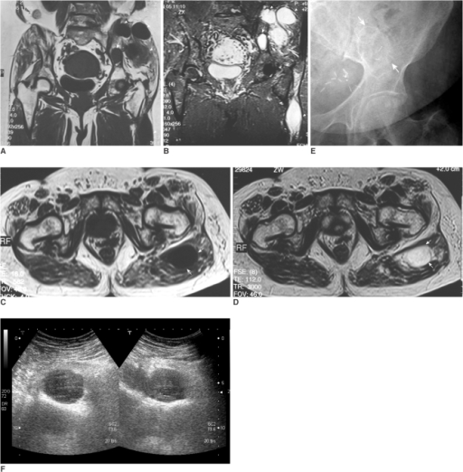 A, B. Coronal T1-weighted (A) and coronal STIR MR images (B) demonstrate an area of signal abnormality within the left ilium. The region appears with low signal intensity on T1 and high signal intensity on STIR relative to adult yellow marrow, consistent with fibrous dysplasia (arrow). Also identified are multiple intramuscular masses within the left gluteal musculature and left thigh, which appear with low signal intensity on T1-weighted images and high signal intensity on STIR images relative to muscle, consistent with myxomas (arrowheads).C, D. An axial T1-weighted image (C) Axial T2-weighted MR images (D) demonstrate an oval, sharply defined mass in the left gluteus maximus, which has a low signal intensity on T1 and high signal intensity on T2 with homogeneity in both signals (arrows).E. An anteroposterior radiograph of the left hip demonstrates a well-defined oval osteolytic lesion with a thin, sclerotic rim within the left ilium (arrows).F. Ultrasonography of the left gluteal musculature shows a heterogeneous, solid, hypoechoic, lobulated intramuscular tumor with multiple small-sized fluid filled cystic areas.
