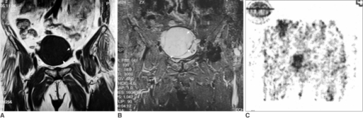 A. Coronal T1 weighted MR image shows a solid mass within the enlarged endometrial cavity. The tumor has regular margins and homogenous low signal intensity (arrows).B. A coronal STIR MR image of the pelvis. The uterine mass is observed as a homogenous area of high signal intensity in the uterus (arrows). There is no evidence of necrotic areas within the lesion.C. FDG-PET image. Accumulated FDG is seen in the uterine lesion.
