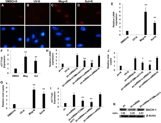 miR-K12-11 suppresses BACH-1 expression and increases endothelial cell susceptibility to KSHV through upregulation of xCT.(A–G) HUVEC were incubated with vehicle control (DMSO), Msg, or Sul for 12 h followed by purified KSHV (K) using an MOI∼0.5–1. 16 h later, LANA IFA were performed as previously described. (A–D) Representative images from one of three independent experiments are shown. (H–K) HUVEC were transfected with control or miRNA-expressing vectors along with a 2'OMe RNA antagomir for miR-K12-11 or either control (n) or xCT-specific siRNA. (E,H) Relative LANA expression was determined as described in Methods. (F,I) qRT-PCR was used to determine relative xCT transcript expression. (G,J) qPCR was used to determine relative intracellular KSHV DNA content normalized to controls. (K) Western blots were used to identify BACH-1 protein expression and immunoreactivity quantified as previously described. For all assays, error bars represent the S.E.M. for three independent experiments. * = p<0.05, * * = p<0.01 (For Fig. H–J, comparisons are relative to either pc-miRNA or pc-miRNA+K).