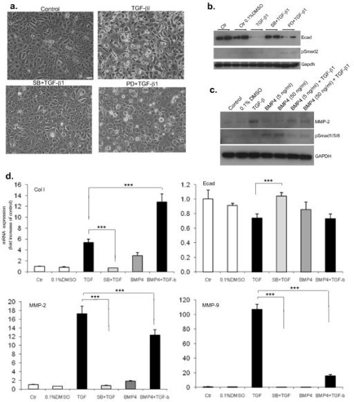 Transforming growth factor (TGF)-β1-induced epithelial mesenchymal transition (EMT) in human bronchial epithelial cells (HBECs) is Smad-dependent. HBECs that have been pre-incubated with the activin receptor-like kinase (ALK)-5 inhibitor SB431542 (SB, 10 μM) 1 h before the addition of TGF-β1 (5 ng/ml) are unable to undergo EMT after 5 days of differentiation. By contrast, mitogen-activated protein kinase inhibition by PD98059, a MEK inhibitor (PD, 10 μM), only partially inhibits EMT. (a) Representative phase contrast images (10× magnification, scale bar = 10 μM) show that HBECs in the presence of TGF-β1 lose cell-cell contact, become more sparse and change into an elongated fibroblastoid morphology. This effect is inhibited after pre-incubation of the cells with the ALK-4,-5,-7 inhibitor SB but not by the MEK inhibitor PD. (b) Western-blot analysis shows that SB completely abolishes TGF-β1 gene regulation of E-cad and the phosho-Smad2 signal is fully inhibited in the presence of SB. An antibody against glyceraldehyde 3-phosphate dehydrogenase (GAPDH) was used as a loading control. (c) Western-blot analysis shows that the upregulation of matrix metalloprotease (MMP)-2 by TGF-β1 is partially inhibited by the presence of bone morphogenetic proteins (BMP)4 confirming the quantitative polymerase chain reaction (qPCR) results shown in (d). Phosho-Smad1/5/8 shows active BMP signalling in the presence of BMP4 which is inhibited in the presence of TGF-β1. An antibody against GAPDH was used as loading control. (d) q(PCR) analysis shows that SB inhibits gene expression changes of collagen I α 1, MMP2, MMP-9 and E-cad induced by TGF-β1 (top 2 panels). BMP4 (50 ng/ml) induces a significant upregulation of collagen I in the presence of TGF-β1, as compared to TGF-β1 alone (top left panel) and has no significant effect on E-cad expression either alone or in combination with TGF-β1 (top right panel). In contrast, the upregulation of MMP-2 and MMP-9 expression in the presence of TGF-β1 is significantly inhibited by concomitant BMP4 treatment (bottom 2 panels). The relative expression level of each gene was normalized to GAPDH mRNA in the same sample. Statistical significance was determined by one-way ANOVA followed by Tukey test; ***P < 0.001.