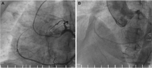 Coronary angiography. An aberrant branch, extending from the distal left circumflex artery, continued to the right atrioventricular groove, covering the territory of the right coronary artery (A). Aortography showed the absence of the right coronary ostium (B).