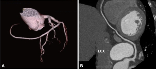 Contrast-enhanced 64-slice multi-detector cardiac computed tomography. It showed that the right coronary artery was absent (A) and the extended left circumflex coronary artery supplied the territory of the right coronary artery (B).