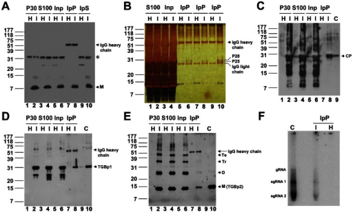 Co-immunoprecipitation of various virus components with TGBp3:HA.(A) Immunoprecipitation of the TGBp3:HA-containing membrane protein complex. Inp, the S100 prepared from mock-inoculated (H) and BaMV-infected tissues (I) pre-cleaned with Protein A-Sepharose (PA). IpP and IpS, the immunoprecipitate and supernatant, respectively, obtained through immunoprecipitation of Inp with anti-HA (see Materials and Methods). M, the monomeric TGBp3:HA. (B) Examination of protein components in the IpP. P25 and P28 are the two proteins detected only in the IpP prepared from the BaMV-infected tissues (I) but not from the mock-inoculated (H) tissues. (C–E) Co-immunoprecipitation of CP, TGBp1 and TGBp2 with TGBp3:HA, respectively. C indicates purified CP, TGBp1 or TGBp2 used as reference protein for western blot. M, D, Tr and Te shown on the right margin of panel E indicate the monomeric, dimeric, trimeric and tetrameric TGBp2. (F) Analysis of endogenous viral RNA and replicase in the IpP prepared from the BaMV-infected tissues. The positions of genomic (g)RNA, subgenomic (sg)RNA 1 and sgRNA 2 on the RNA gel are shown on the left margin. C, virus replication in the presence of 1.5% NP-40 solubilized P30 fraction which contains BaMV vRNA and replicase.