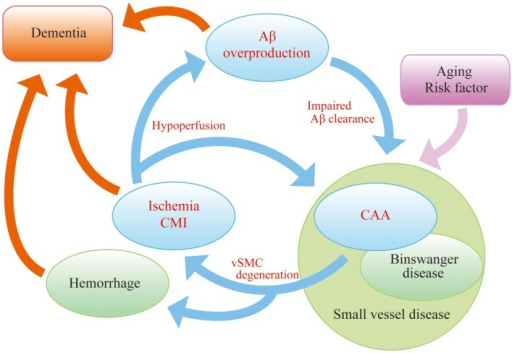 """AD malignant cycle"". Aβ overproduction impairs Aβ elimination leading to vascular smooth muscle cells (vSMC) degeneration, cerebral ischemia, and microinfarcts. Ischemia also induces Aβ overproduction. Such vicious circle consists of core pathology in sporadic AD. Note that cessation of Aβ overproduction is not sufficient to sever the cycle."
