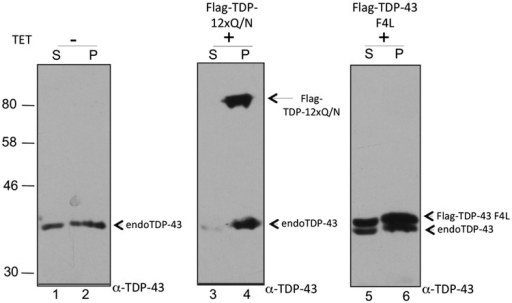 A cell lysate fractionation of normal cells, Flag-TDP-12xQ/N HEK293 and Flag-TDP-43 F4L stable cell lines induced or not with tetracycline. The soluble (S) and insoluble (P) cell fractions were separated by ultracentrifugation, and the corresponding Flag-tagged proteins and endogenous TDP-43 were detected by western blot using an anti-TDP-43 antibody.