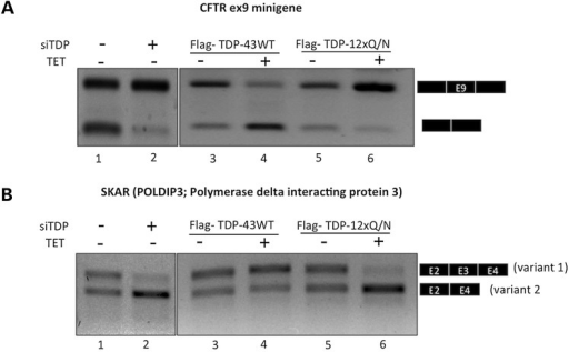 (A) An RT-PCR assay in which it is possible to observe the splicing pattern of CFTR exon 9 minigene in the presence of Flag-TDP-43 WT or Flag-TDP-12xQ/N-induced protein. The corresponding HEK293 stable cell lines were induced or not during 48 h with tetracycline. The cells were transfected with CFTR9 minigene and maintained under induction condition for an additional 24 h. The splicing pattern (exclusion/inclusion) of exon 9 from CFTR9 minigene was evaluated by RT-PCR. In (B) is reported the splicing pattern of the endogenous gene POLDIP3/SKAR (exon 3) following induction of Flag-TDP-43 WT or Flag-TDP-12xQ/N protein. Exon inclusion was evaluated by RT-PCR. In both cases, the result of knocking down the endogenous TDP-43 is reported as a positive TDP-43 loss-of-function control.
