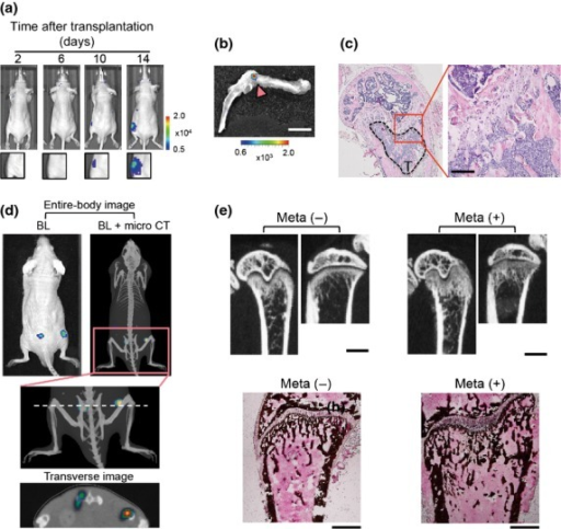 Murine osteosarcoma LM8 cells develop osteoblastic bone metastasis. (a) Representative time course bioluminescence (BL) images after intracardiac (i.c.) transplantation of LM8/luc. (b) Ex vivo imaging of LM8/luc tumor-bearing hind limb shown in (a) (14 days after LM8/luc injection). LM8/luc metastasis signal is indicated by an arrowhead. Scale bar = 5 mm. (c) Hematoxylin–eosin staining of hind limb bone with LM8 metastasis (T) of (b). Scale bar = 100 μm. (d) Multimodal imaging. Images were obtained 14 days after i.c. transplantation of LM8/luc. The dashed line indicates imaging section of the transverse image. Micro CT, micro X-ray computed tomography. (e) Aberrant bone formation due to osteoblastic bone metastasis in the femur and tibia. Micro X-ray CT images were obtained 21 days after i.c. injection of LM8 (upper panels). Scale bar = 1 mm. The lower panels indicate that von Kossa staining of the same metastasis-free (Meta−) and bone metastatic (Meta+) femurs as the upper panels. Scale bar = 500 μm.