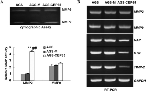CEP65 promotes MMP2 activity and decreases expression levels of metastasis-related genes. (A) CEP65 promotes MMP2 activity. Serum-free conditioned media from indicated cells were subjected to zymographic assay. Following removal of the SDS, the gelatin-containing gel was incubated in developing buffer and then visualized by Coomassie blue staining (upper panel). Relative activities of MMP2 and MMP9 were calculated (lower panel). (B) Effect of CEP65 on gene expression, as detected by reverse transcription polymerase chain reaction. **P<0.01 vs. AGS; ##P<0.01 vs. AGS-M. CEP65, cancer and embryo expression protein 65; MMP, matrix metalloproteinase; GAPDH, glyceraldehyde 3-phosphate; AGS-M, AGS mock-transfected cells.