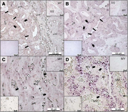 In situhybridization for leptin and leptin receptor in the inter-placental uterus and utero-placental compartments during pregnancy. Localization of leptin (Lep) and leptin receptor (LepR) mRNA by in situ hybridization in inter-placental sections (Ut) at post-implantation (A, B), and in the utero-placental compartments (Ut/Pl) at prepartum luteolysis (C, D). (A) Lep mRNA expression is evident in the surface epithelium (solid arrows) and superficial glandular epithelium (open arrows) with weak sub-epithelial stromal signals (solid arrowheads). Deep uterine glands and the myometrium also stain positively for Lep (inset upper right). A negative control is shown in the lower left inset. (B) LepR mRNA is expressed in the luminal epithelium (solid arrows) and superficial glandular epithelial cells (open arrows). Note the prominent stromal signals (solid arrowheads) close to the lumen. The upper right inset is positive staining for LepR in the deep uterine glands and myometrium, and the lower left inset shows a negative control. (C) Intense Lep expression is noted in the fetal trophoblast cells (open arrowheads) of the placental labyrinth at prepartum luteolysis, in contrast to weak staining in maternal decidual cells (solid arrowheads) and sporadic signals in blood vessel endothelium (thin arrows); the upper right inset shows positive reaction in the myometrium, and the lower left inset is the negative control sense probe for Lep. (D) LepR mRNA expression is strong in the placental labyrinth at prepartum luteolysis within fetal trophoblast cells (open arrowheads), while decidual cells have less intense signals (solid arrowheads) and endothelial cells (thin arrows) stain occasionally; the upper right inset shows LepR mRNA in the myometrium, and the lower left inset presents the negative control sense probe for LepR. DG: Deep uterine glands, MY: Myometrium, MV: maternal vessel.