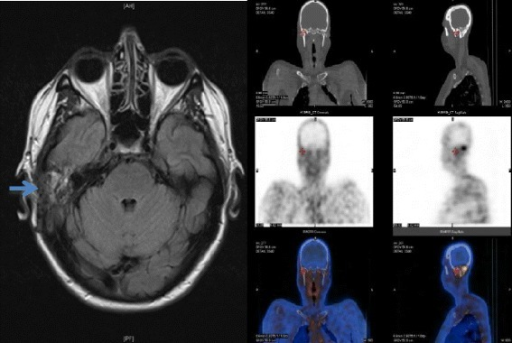 MRI scan - T2 weighted image showing soft tissue oedema in the region of the right mastoid (left-see arrow) and technetium 99 m scan showing increased uptake in the same area (right).