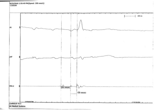 Electrophysiological study indicated sinus node dysfunction.