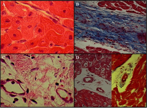 Histopathology of chronic myocardial infarction at four weeks after myocardial infarction.A. Cardiomyocytes were the major structural elements in normal myocardium. B. Scar tissue was characterized by the discrete collagen fibers and loss of cellularity. Collagen fibers were stained blue using Masson's trichrome staining (Arrowhead, Fig. 7B). C. Dilated remodeled vessels were frequently observed in the territory of the infarction (Arrowheads, Fig. 7C). D. Large thick-walled blood vessels were apparent at the peri-infarction zones (Arrowheads, Fig. 7D).