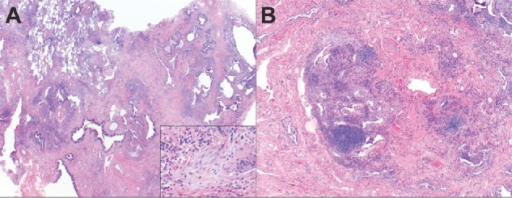 Surgical lung biopsy findings: (A) Low power view of the wedge biopsy from the right middle lobe lung shows mature fibrosis with honeycomb changes in the vicinity to alveolated lung parenchyma with preserved architecture and without fibrosis (regional heterogeneity). Within the mature fibrosis, there are fibroblastic foci (insert) (temporal heterogeneity) and areas of lymphoid infiltrate (B). These morphologic features are diagnostic of UIP. Magnifications ×20 (A), ×40 (B), and ×200 (A, insert).