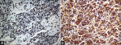 (a) Thyroid transcription factor-1 staining shows nuclear immunoreactivity of tumor cells (immunohistochemical staining, original magnification ×20). (b) Positive immunoreactivity of tumor cells with calcitonin (immunohistochemical staining, original magnification ×20)