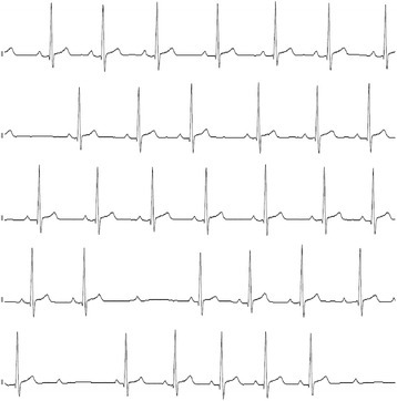 ECG monitoring in overt hypothyroid state