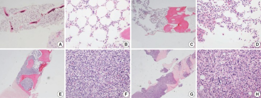 In EDTA versus HCl comparison of a pair of bone marrow sampled from the same patient (A–D, EDTA versus HCl group; A, B, EDTA protocol; C, D, HCl protocol), and in RDO versus HCl comparison of a pair of bone marrow sampled from the same patient (E–H, RDO versus HCl group; E, F, RDO protocol; G, H, HCl protocol), all the three methods of EDTA, RDO, and HCl protocols demonstrate intact and well-preserved histological features of bone marrow. EDTA, ethylenediaminetetraacetic acid disodium salt dehydrate; HCl, hydrochloric acid; RDO, RDO GOLD.