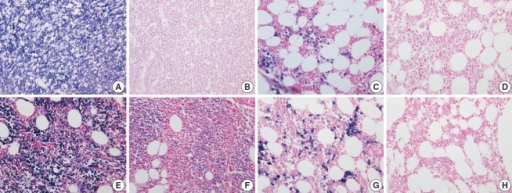 The quality of RNA is compared in kappa light chain (A–D) and lambda light chain (E–H) RNA in situ hybridization using a pair of bone marrow specimens from the same patient. In a case of kappa light chain-restricted plasma cell myeloma, EDTA protocol (A) reveals intact quality while HCl (B) protocol shows poor quality in kappa light chain RNA in situ hybridization. In a case of lambda light chain-restricted plasma cell myeloma, EDTA protocol (E) reveals intact quality while HCl (F) protocol shows poor quality. In a case of polyclonal plasma cell infiltration within the bone marrow, the EDTA and RDO protocol (C and G, respectively) reveal intact quality while HCl (D, H) protocol show poor quality in kappa and lambda light chain RNA in situ hybridization, respectively. EDTA, ethylenediaminetetraacetic acid disodium salt dehydrate; HCl, hydrochloric acid; RDO, RDO GOLD.