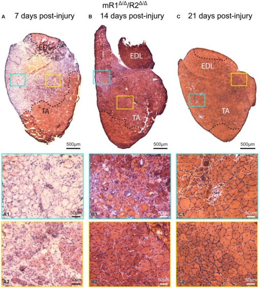 Muscle tissue of adult mR1Δ/Δ/R2Δ/Δ mice retains regenerative activity. Representative images of H&E stained cross sections of TA/EDL from 4-month-old mR1Δ/Δ/R2Δ/Δ mice, showing extensive damage at 7 days post cardiotoxin-induced injury, and progressive recovery at 14 and 21 days post-injury. For each panel, regions delineated in the low magnification image of the whole TA/EDL are shown as higher magnification views (A1–C2) identified with corresponding colored frames; dotted lines in the low magnification images delineate the outer limits of the region that has been effectively injured. Morphology of control contralateral TAs (NaCl-injected, not shown) appeared similar to that of the uninjured muscle depicted in Figure 3. (A) As seen on day 7 post-injury, cardiotoxin injection caused massive myofiber degeneration, resulting in large necrotic regions in which empty remnants of the original myofibers (A1) and infiltration of inflammatory cells (A2) are detected; regions with small regenerating myofibers with central myonuclei (hallmark of regenerating myofibers) were occasionally observed (A2). (B) On day 14 post-injury, regenerating myofibers were more abundant (B2), but regions showing infiltration of inflammatory cells were still occasionally present (B1); asterisk in (B) and (B2) indicates the scar left at the needle injection point. (C) By day 21 post-injury, most of the original injured region showed successful regeneration based on the presence of larger (relative to day 14) myofibers containing central nuclei and overall tissue morphology (C2); infiltration of inflammatory cells was only minimally detected at this stage (C1).