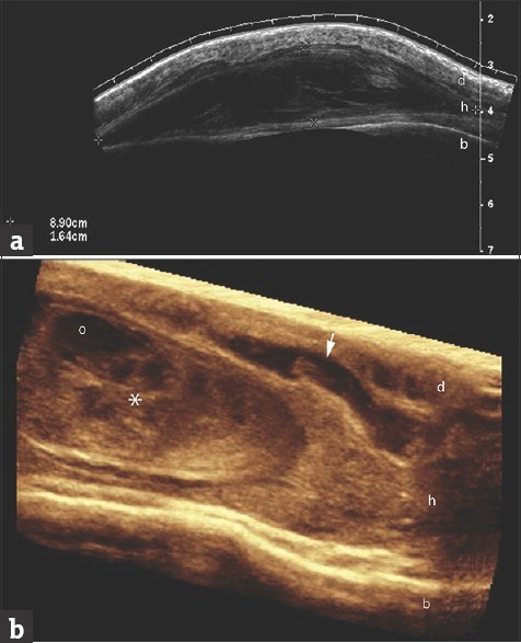 2D and 3D Ultrasound (a) 2D panoramic grey scale transv | Open-i