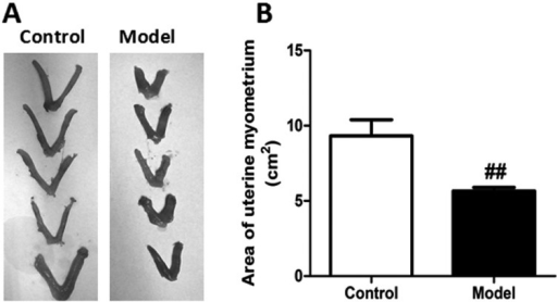 Area of uterine myometrium in oxytocin-induced writhing mice. Pictures of uterinemyometrium in control and model group (A). The areas of uterine myometrium werecalculated by Quantity One software 4.6.2. (B) Data are presented as Means ± SEM(n=5). Model group versus the control group ##P<0.01.Statistical significance was analyzed by using Student'st-test.