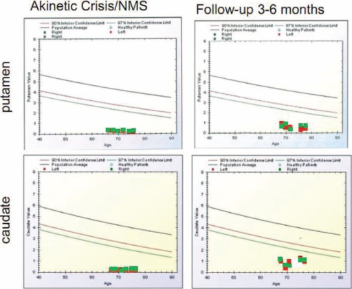 BasGan V2 analyses during AC/NMS in 6 patients and at the follow-up 3 to 6 months in the 5 surviving patients. Red dots indicate left putamen/caudate, and green dots indicate right putamen/caudate. AC = akinetic crisis, NMS = neuroleptic malignant syndrome.