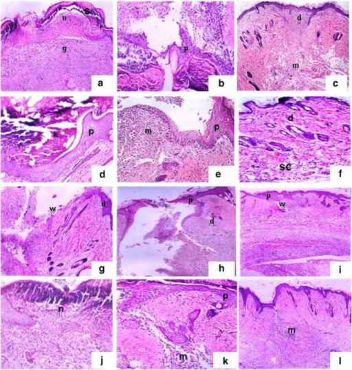 Histological changes during the wound-healing process on the first (left), fourth (centre) and eighth (right) days after incision in control wounded (a–c), control wounded treated (d–f), diabetic wounded control (g–i) and diabetic wounded treated (j–l) groups; scab (s), granulation (g), dermis (d), wound (W), keratinization (K), epidermis (p), necrosis (n) and inflammatory cells (m). ×100