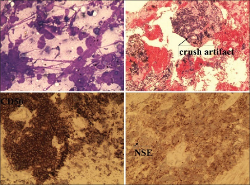 Histopathology and IHC panel-small round blue cell tumor with CD 56 and NSE positivity
