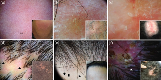 Dermoscopy of discoid lupus erythematosus of the scalp varies according to the disease stage: active lesions may be mainly characterised by red dots (a) or follicular keratotic plugs (quite large yellowish/whitish dots) and thick arborising vessels (b), while long-lasting lesions commonly display loss of follicular openings, white areas and thin vessels (c). The main dermoscopic hallmarks of active lichen planopilaris are perifollicular scales; characteristic (but not pathognomonic) white dots (fibrotic white dots) (black arrowheads) and a reddish background are also present in less active areas in this case (d). Dermoscopic examination of a case of frontal fibrosing alopecia reveals minor perifollicular scaling with an aflegmasic (ivory white to ivory beige) surrounding background; follicular openings with only one hair at the hair-bearing margin (black arrows) and lonely hair (black arrowhead) are also visible (e). Classic dermoscopic appearance of active folliculitis decalvans showing follicular pustules, yellow discharge, crusts and characteristic hair tufts that contain >10 hair shafts (white arrowhead); unspecific vessels and erythema are also evident in the picture (f)