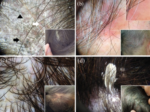 "Dermoscopic examination of a case of tinea capitis displays scaling and the peculiar ""comma"" hair (white arrow), ""corkscrew"" hair (white circle), ""zigzag"" hair (black arrow) and ""Morse code"" hair (black arrowhead) (a). Dermoscopy of scalp psoriasis reveals the typical dotted vessels (magnified in the upper-right box) and white scales; a haemorrhagic spot is also evident (b). Differently from psoriasis, scalp seborrhoeic dermatitis shows yellowish scales and the characteristic arborising vessels (white circle) (c). Dermoscopic examination of pityriasis amiantacea displays diffuse white scaling and the characteristic compact white keratotic material adhering to a tuft of hair (asbestos-like scale) (d)"