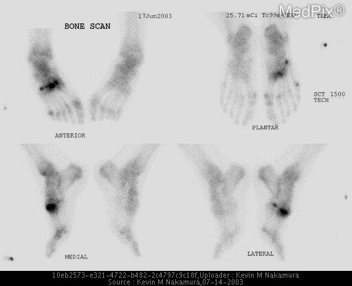 Bone scan reveals intensely increased uptake in the right 1st and 2nd tarsal-metatarsal joints as well as hyperemia of the entire right foot.  Additionally, there is increased uptake in the head of the right 5th metatarsal, the right tibial sesamoid bone, the head of the right 2nd metatarsal, and the tuberosity of the right 5th metatarsal, consistent with stress reactive changes.